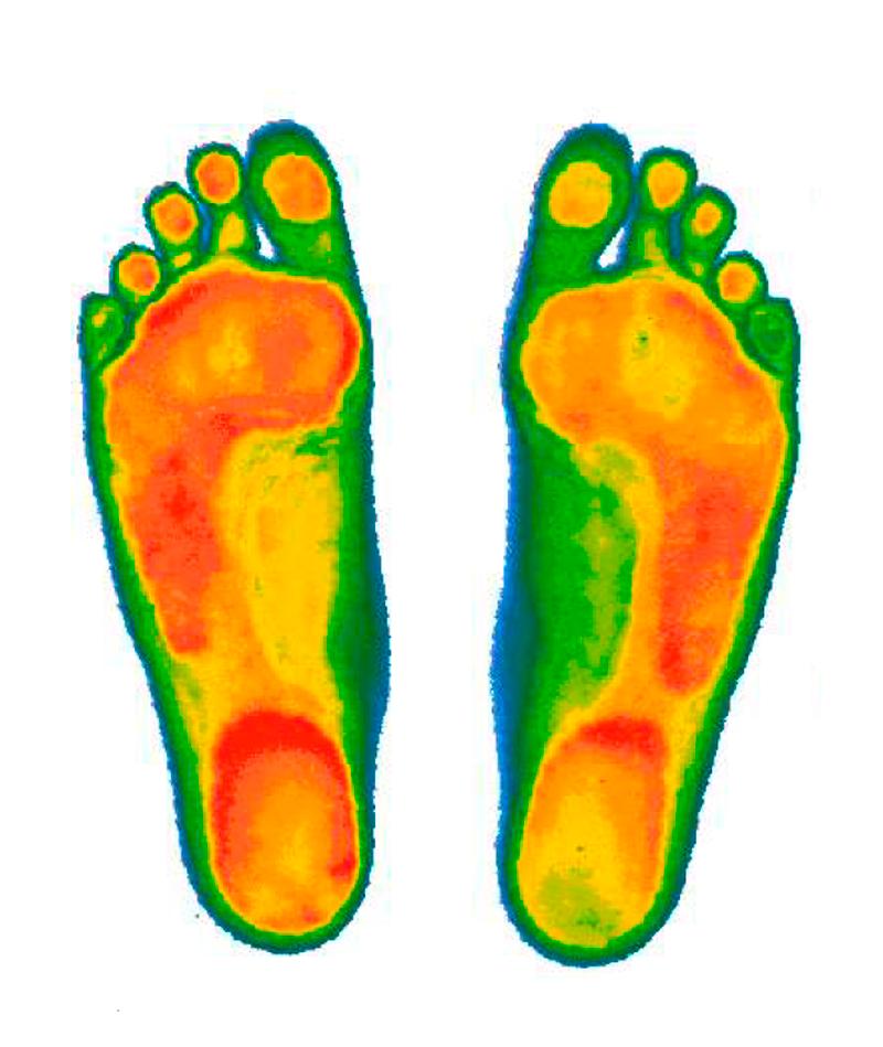 Компьютерная диагностика стоп на сканере и динамической платформе
